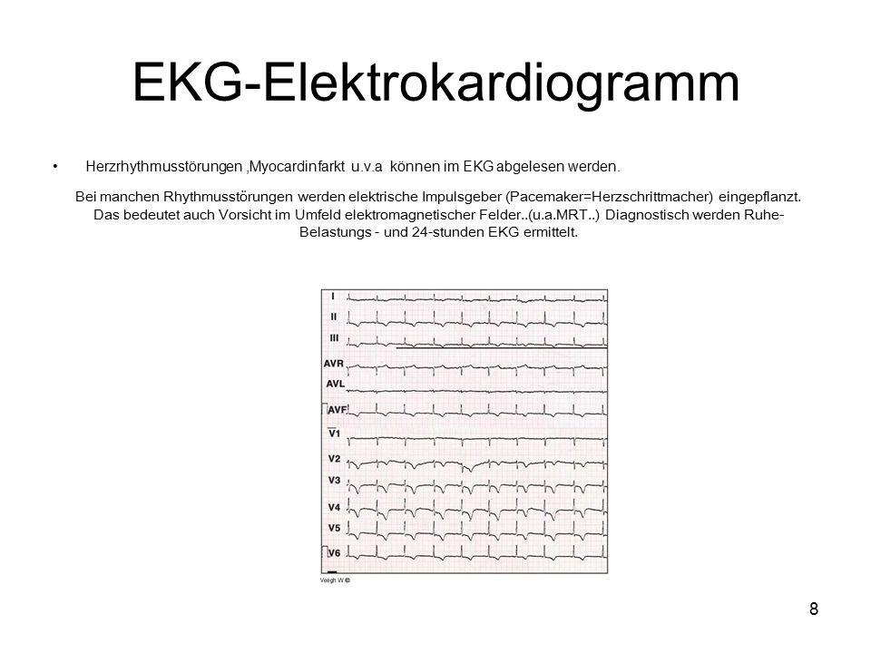 8 EKG-Elektrokardiogramm Herzrhythmusstörungen,Myocardinfarkt u.v.a können im EKG abgelesen werden.