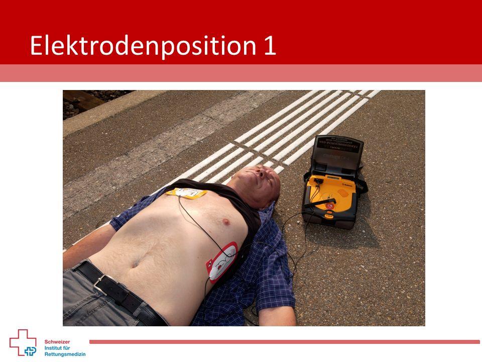Elektrodenposition 1