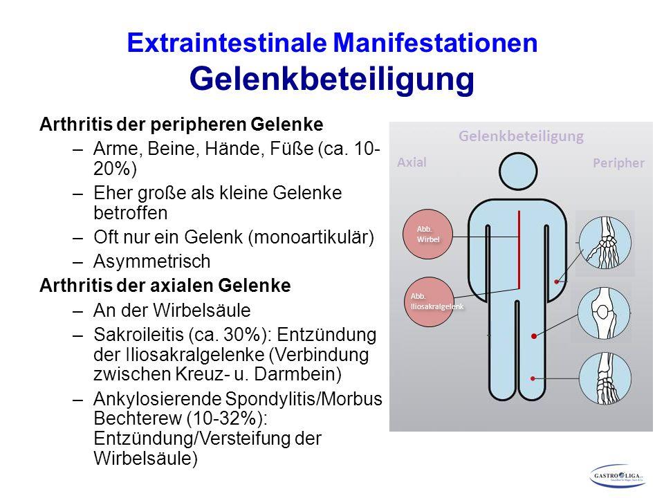 Extraintestinale Manifestationen Gelenkbeteiligung Arthritis der peripheren Gelenke –Arme, Beine, Hände, Füße (ca. 10- 20%) –Eher große als kleine Gel