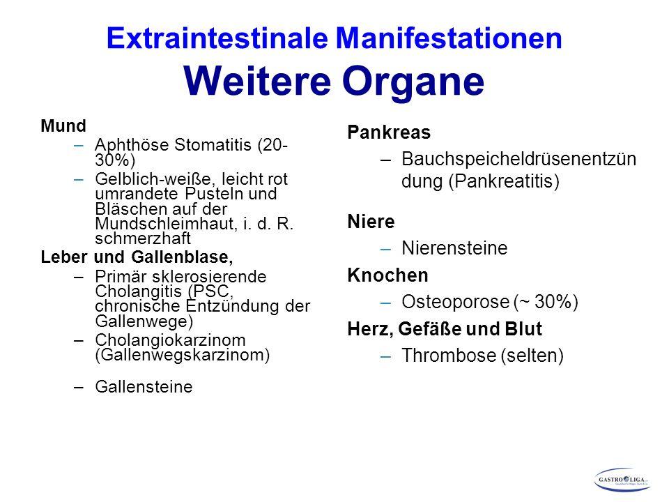 Extraintestinale Manifestationen Weitere Organe Mund –Aphthöse Stomatitis (20- 30%) –Gelblich-weiße, leicht rot umrandete Pusteln und Bläschen auf der