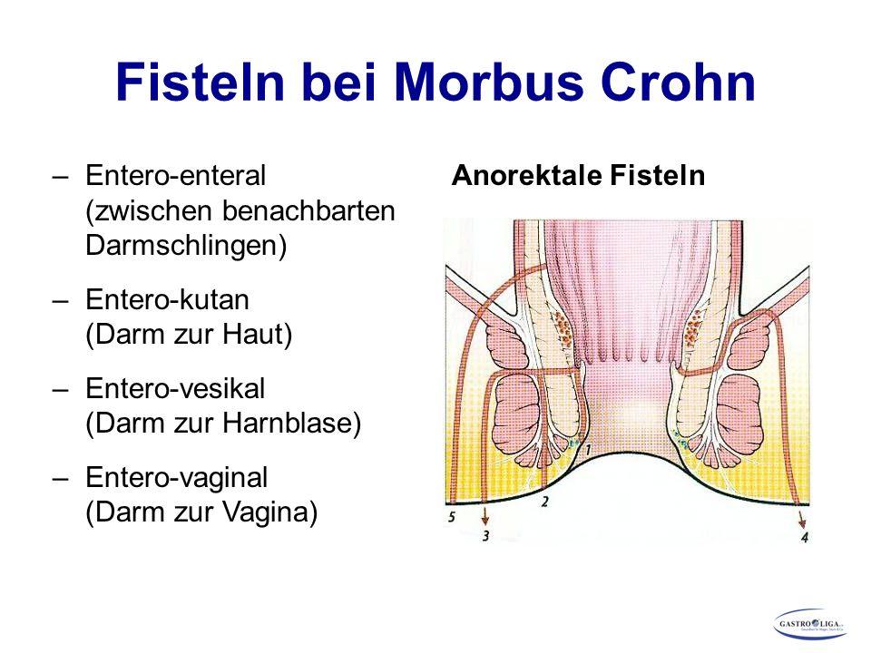 Fisteln bei Morbus Crohn –Entero-enteral (zwischen benachbarten Darmschlingen) –Entero-kutan (Darm zur Haut) –Entero-vesikal (Darm zur Harnblase) –Ent