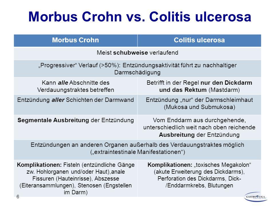 "Morbus Crohn vs. Colitis ulcerosa Morbus CrohnColitis ulcerosa Meist schubweise verlaufend ""Progressiver"" Verlauf (>50%): Entzündungsaktivität führt z"