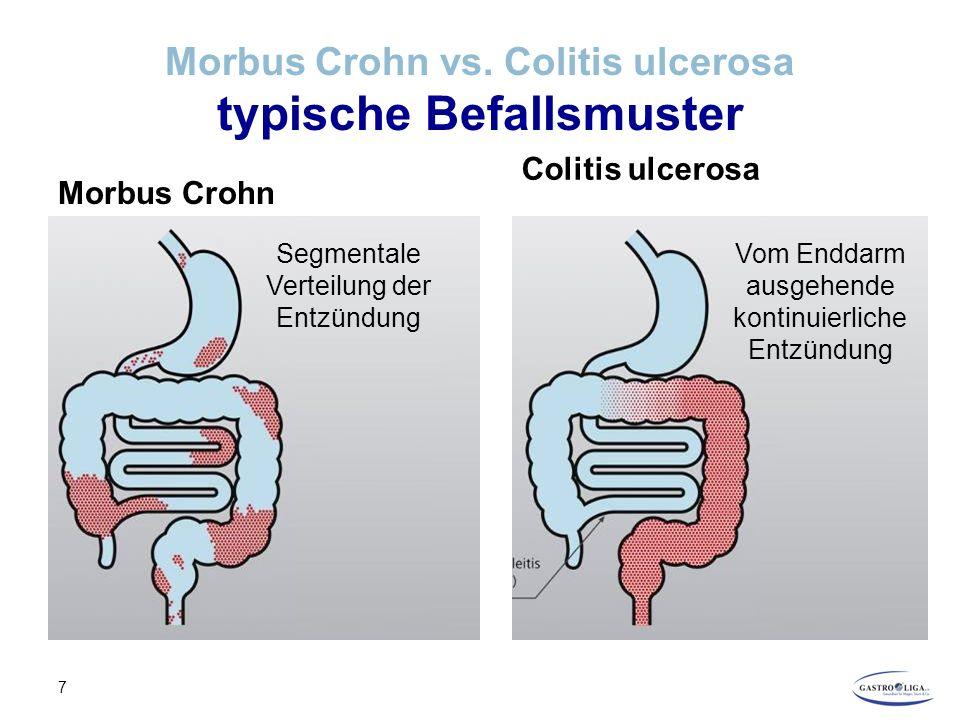 CED – Ursachen Die Rolle des Immunsystems TNF- α und CED Zu Beginn der Entzündung produzieren bestimmte Zellen des Immunsystems verstärkt TNF-α, eine Kettenreaktion wird ausgelöst TNF-α dockt an Rezeptoren von bestimmten Zellen an und gibt damit Signal, den Entzündungsprozess zu starten Das Immunsystem ist aktiviert, es wird mehr TNF-α ausgeschüttet, die Entzündung wird aufrecht erhalten