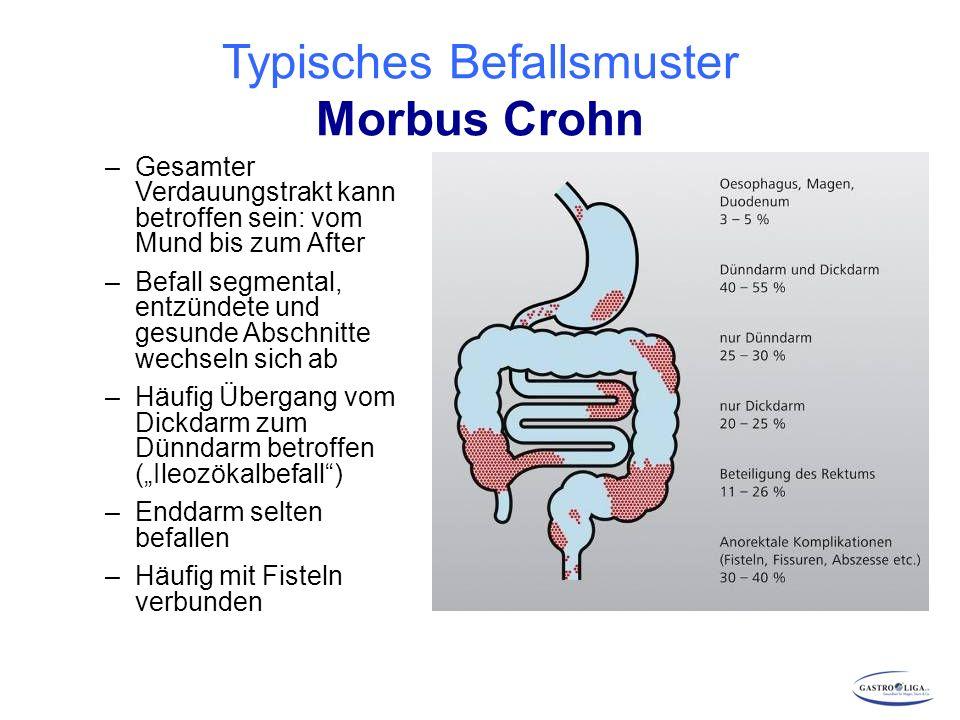 Bildgebende Verfahren Computertomografie (CT) Nachweis von Fisteln Stenosen Darmwandverdickungen Abb.: Feldman M, Friedman LS, Sleisenger MH.eds.
