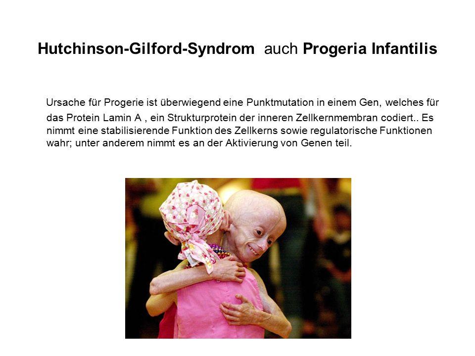 Hutchinson-Gilford-Syndrom auch Progeria Infantilis Ursache für Progerie ist überwiegend eine Punktmutation in einem Gen, welches für das Protein Lamin A, ein Strukturprotein der inneren Zellkernmembran codiert..