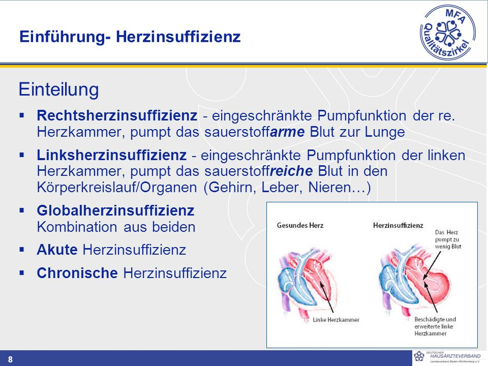 8 Einteilung  Rechtsherzinsuffizienz - eingeschränkte Pumpfunktion der re.