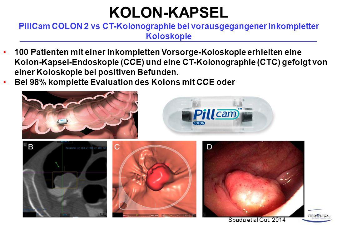100 Patienten mit einer inkompletten Vorsorge-Koloskopie erhielten eine Kolon-Kapsel-Endoskopie (CCE) und eine CT-Kolonographie (CTC) gefolgt von einer Koloskopie bei positiven Befunden.