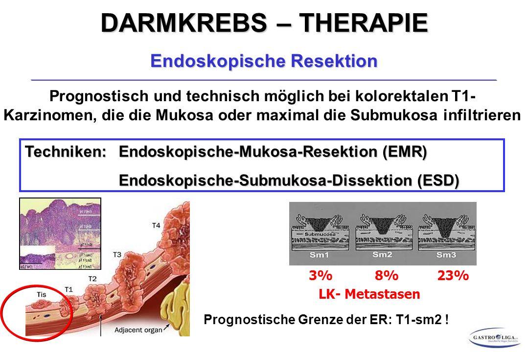 DARMKREBS – THERAPIE Endoskopische Resektion Prognostisch und technisch möglich bei kolorektalen T1- Karzinomen, die die Mukosa oder maximal die Submukosa infiltrieren Techniken:Endoskopische-Mukosa-Resektion (EMR) Endoskopische-Submukosa-Dissektion (ESD) 3% 8% 23% LK- Metastasen Prognostische Grenze der ER: T1-sm2 !