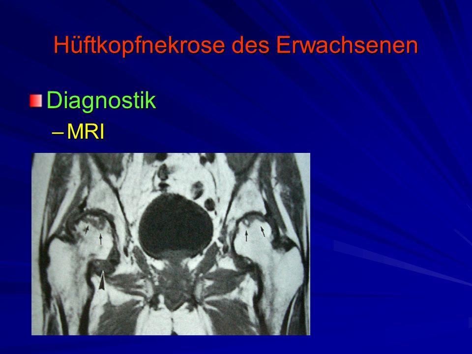 Hüftkopfnekrose des Erwachsenen Diagnostik –MRI