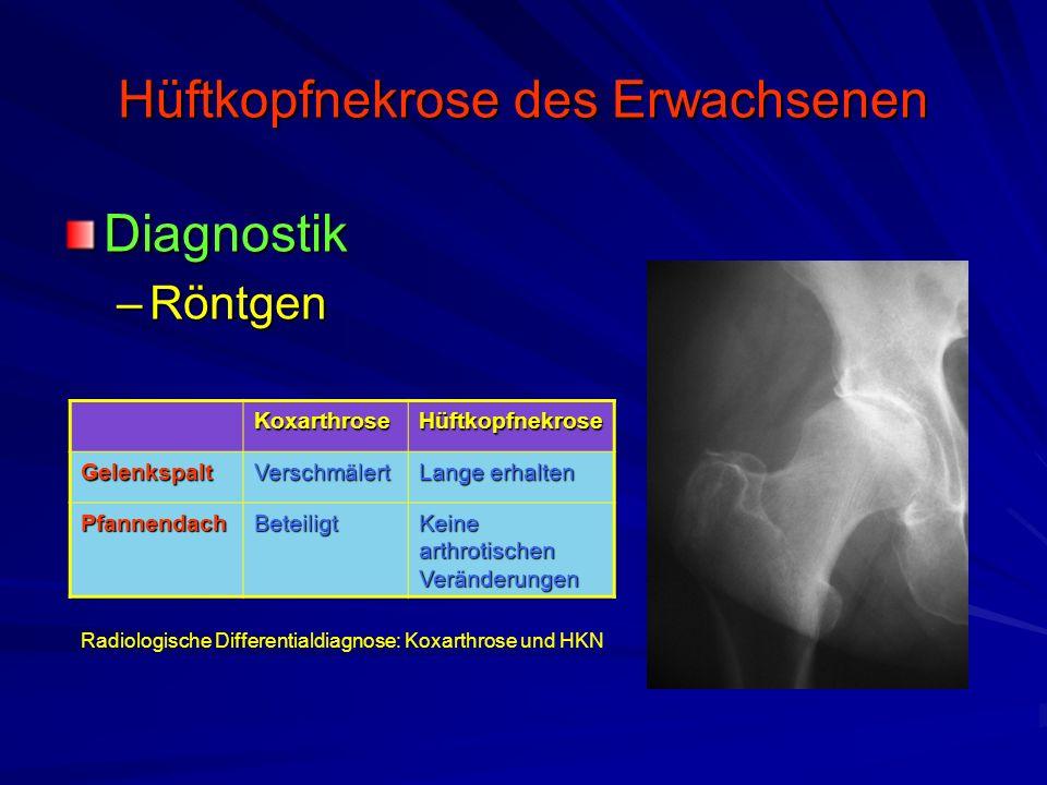 Hüftkopfnekrose des Erwachsenen Diagnostik –Röntgen KoxarthroseHüftkopfnekrose GelenkspaltVerschmälert Lange erhalten PfannendachBeteiligt Keine arthr