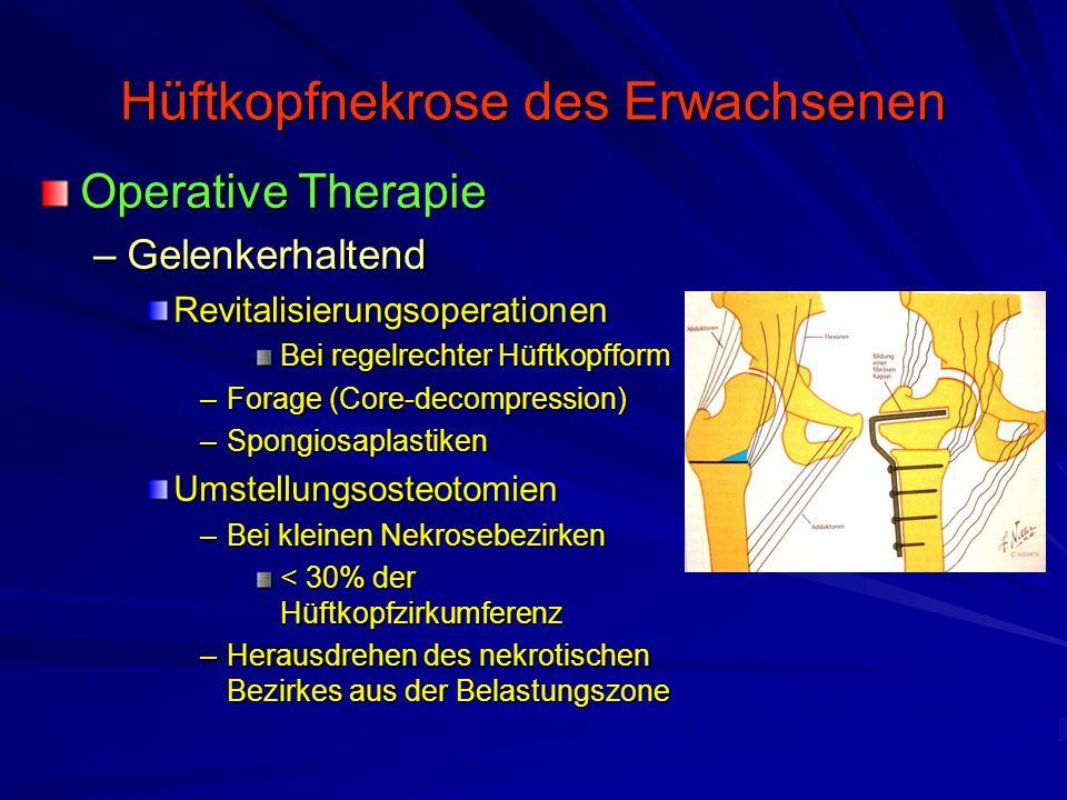 Hüftkopfnekrose des Erwachsenen Operative Therapie –Gelenkerhaltend Revitalisierungsoperationen Bei regelrechter Hüftkopfform –Forage (Core-decompress
