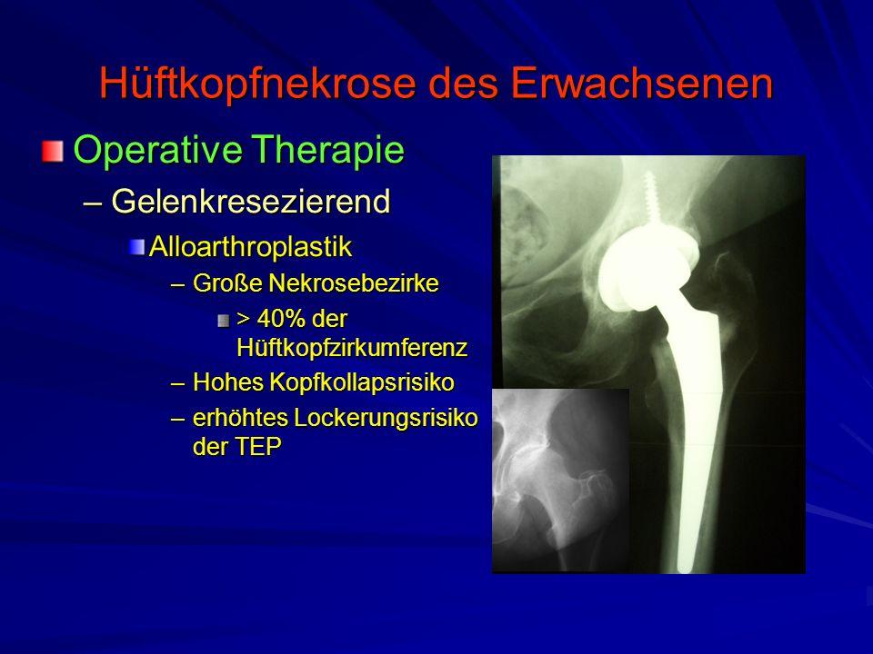 Hüftkopfnekrose des Erwachsenen Operative Therapie –Gelenkresezierend Alloarthroplastik –Große Nekrosebezirke > 40% der Hüftkopfzirkumferenz –Hohes Ko