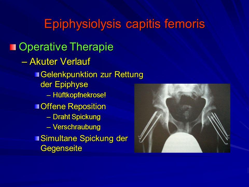 Epiphysiolysis capitis femoris Operative Therapie –Akuter Verlauf Gelenkpunktion zur Rettung der Epiphyse –Hüftkopfnekrose! Offene Reposition –Draht S