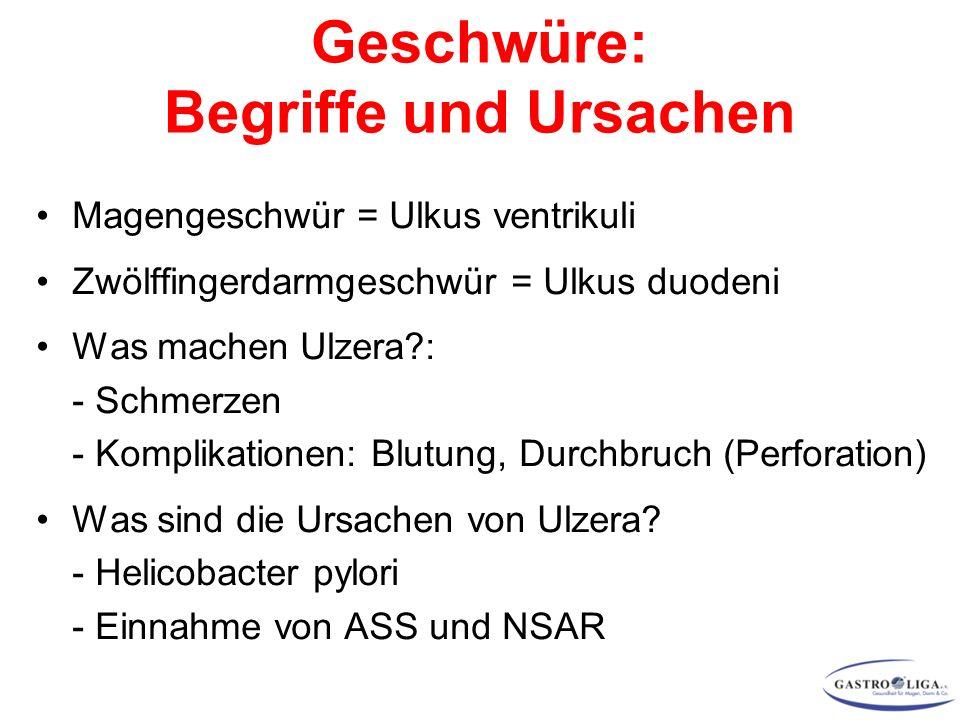 Magengeschwür = Ulkus ventrikuli Zwölffingerdarmgeschwür = Ulkus duodeni Was machen Ulzera : - Schmerzen - Komplikationen: Blutung, Durchbruch (Perforation) Was sind die Ursachen von Ulzera.