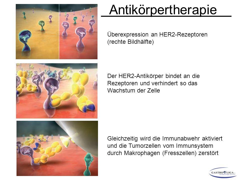 Überexpression an HER2-Rezeptoren (rechte Bildhälfte) Der HER2-Antikörper bindet an die Rezeptoren und verhindert so das Wachstum der Zelle Gleichzeitig wird die Immunabwehr aktiviert und die Tumorzellen vom Immunsystem durch Makrophagen (Fresszellen) zerstört Antikörpertherapie