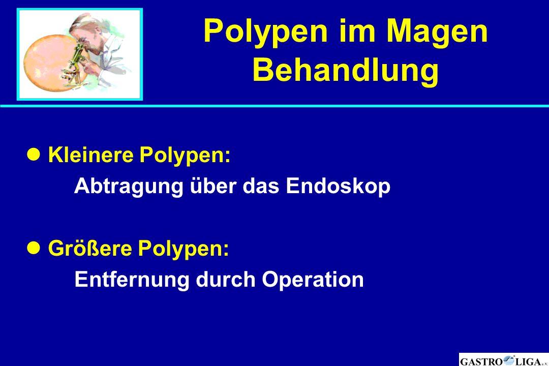 Polypen im Magen Behandlung Kleinere Polypen: Abtragung über das Endoskop Größere Polypen: Entfernung durch Operation