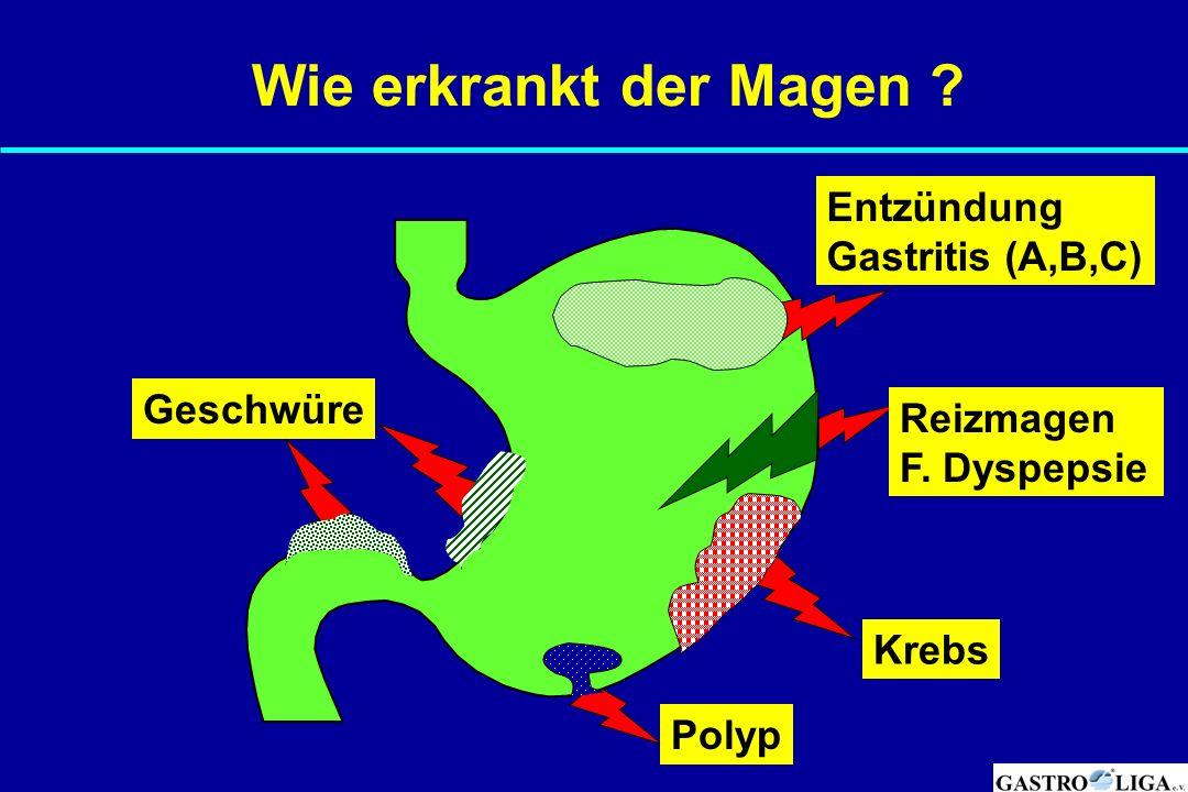 Wie erkrankt der Magen ? Entzündung Gastritis (A,B,C) Reizmagen F. Dyspepsie Krebs Polyp Geschwüre