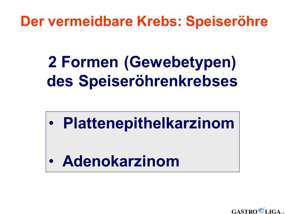 2 Formen (Gewebetypen) des Speiseröhrenkrebses Plattenepithelkarzinom Adenokarzinom
