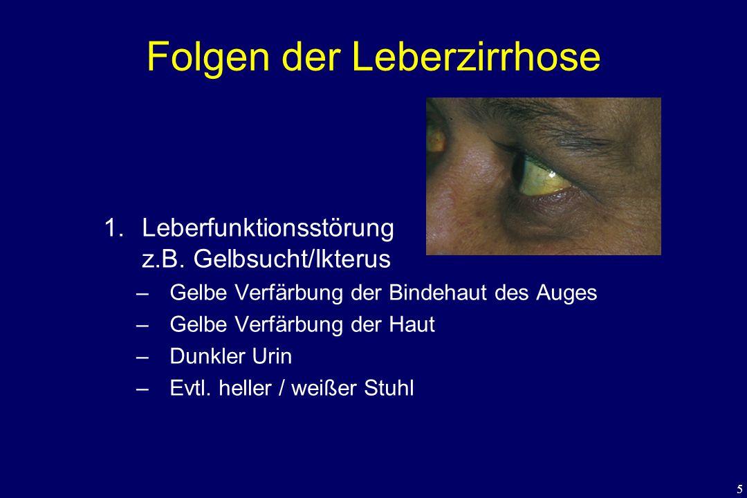 5 Folgen der Leberzirrhose 1.Leberfunktionsstörung z.B. Gelbsucht/Ikterus –Gelbe Verfärbung der Bindehaut des Auges –Gelbe Verfärbung der Haut –Dunkle