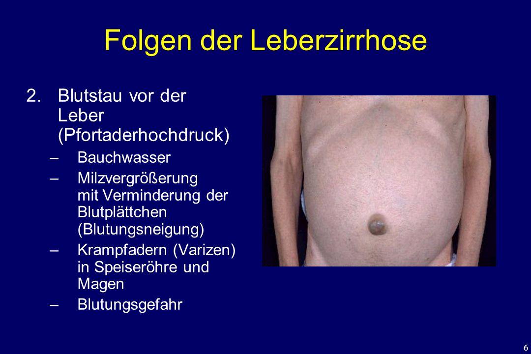 6 Folgen der Leberzirrhose 2. Blutstau vor der Leber (Pfortaderhochdruck) –Bauchwasser –Milzvergrößerung mit Verminderung der Blutplättchen (Blutungsn