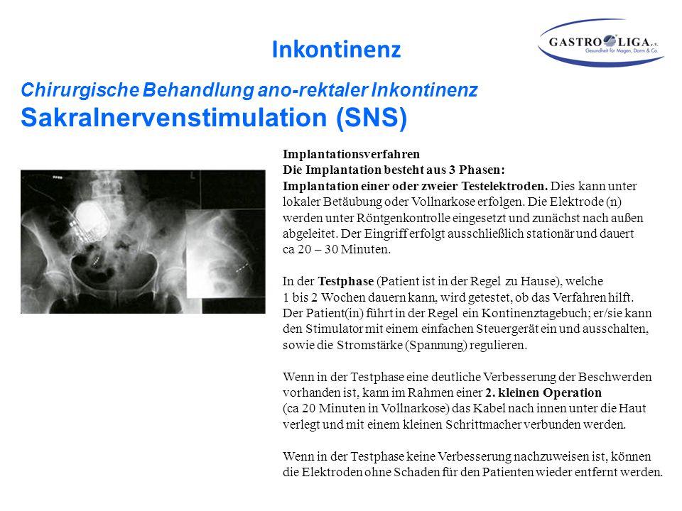 Chirurgische Behandlung ano-rektaler Inkontinenz Sakralnervenstimulation (SNS) Implantationsverfahren Die Implantation besteht aus 3 Phasen: Implantat