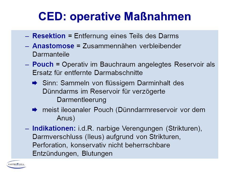CED: operative Maßnahmen Ileoanaler Pouch