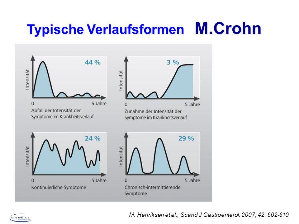TypischeVerlaufsformen C.ulcerosa Remission nach initialem Schub Krankheitsaktivität 0 10 Jahre 0 55 % 6 % 1 % 37 % Ansteigender Schweregrad Chronisch kontinuierlich Chronisch intermittierend Solberg IC, et al.