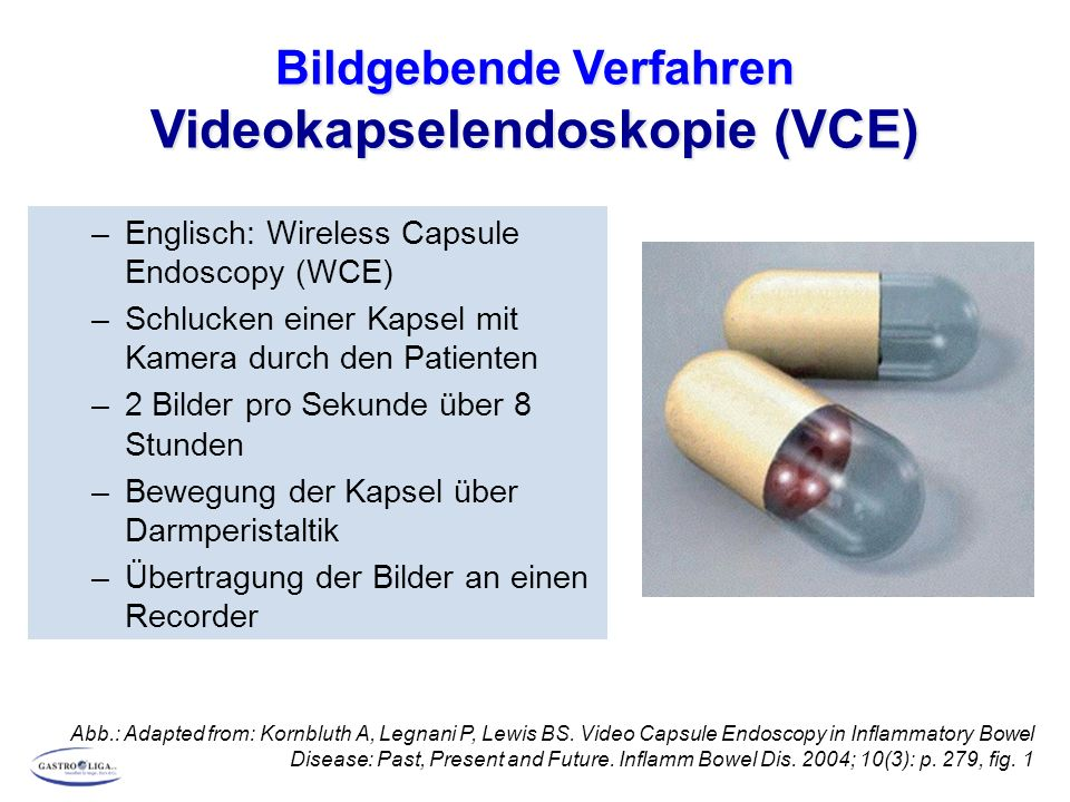 Bildgebende Verfahren Videokapselendoskopie (VCE) DGVS: Aktualisierte S3-Leitlinie M.Crohn Z Gastroenterol 2014