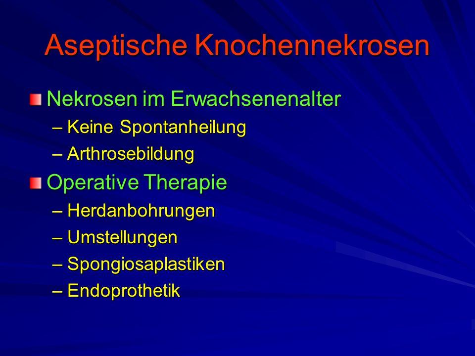 Aseptische Knochennekrosen Nekrosen im Erwachsenenalter –Keine Spontanheilung –Arthrosebildung Operative Therapie –Herdanbohrungen –Umstellungen –Spon