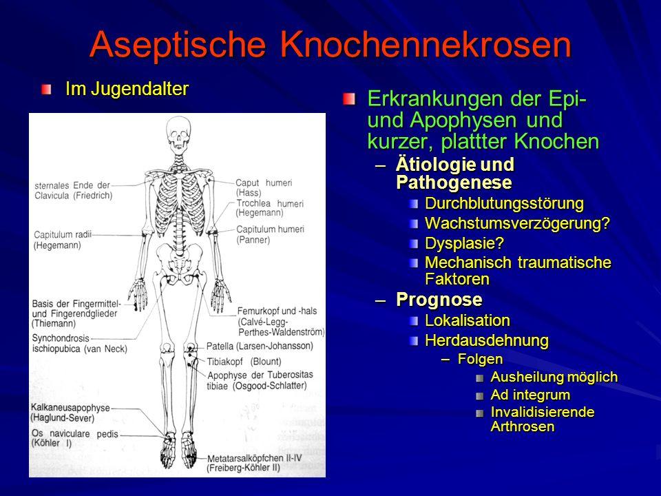 Aseptische Knochennekrosen Im Jugendalter Erkrankungen der Epi- und Apophysen und kurzer, plattter Knochen –Ätiologie und Pathogenese Durchblutungsstö