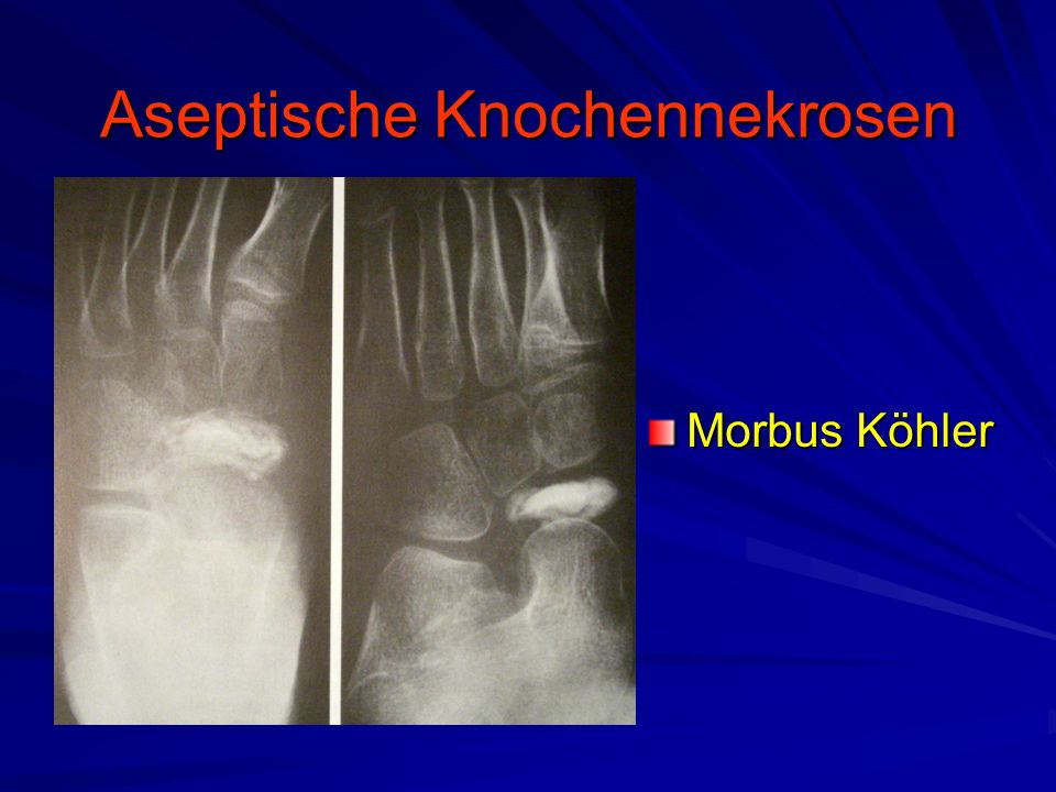 Aseptische Knochennekrosen Morbus Köhler