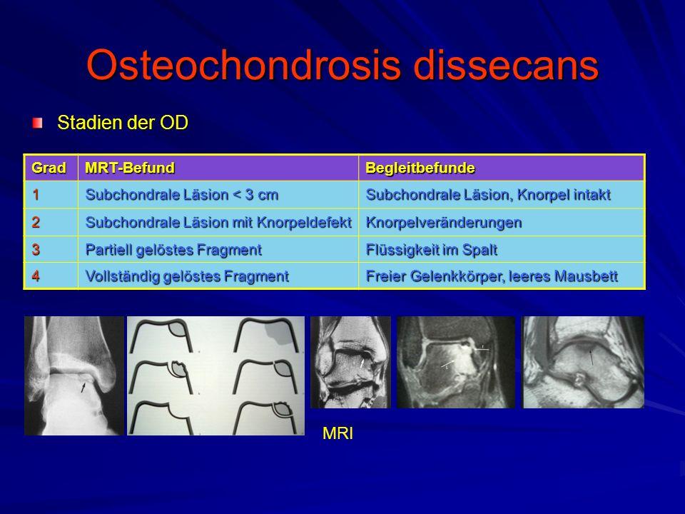 Osteochondrosis dissecans Stadien der OD GradMRT-BefundBegleitbefunde1 Subchondrale Läsion < 3 cm Subchondrale Läsion, Knorpel intakt 2 Subchondrale L