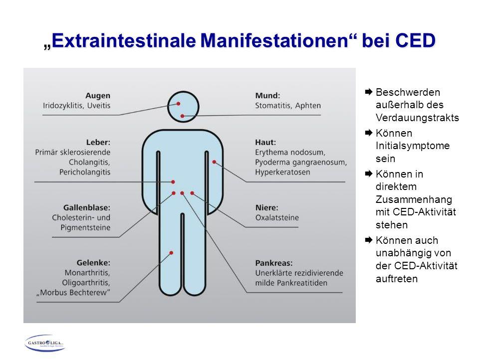 """"""" Extraintestinale Manifestationen"""" bei CED  Beschwerden außerhalb des Verdauungstrakts  Können Initialsymptome sein  Können in direktem Zusammenha"""