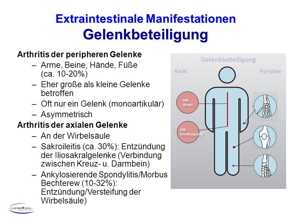 Extraintestinale Manifestationen Gelenkbeteiligung Arthritis der peripheren Gelenke –Arme, Beine, Hände, Füße (ca. 10-20%) –Eher große als kleine Gele
