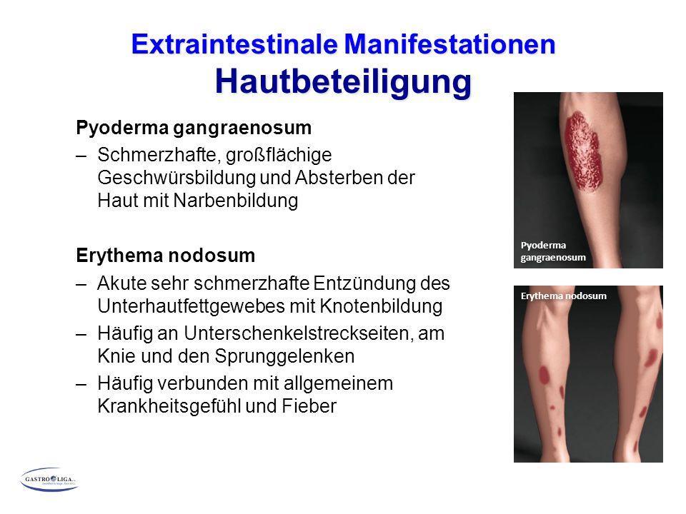 Extraintestinale Manifestationen Hautbeteiligung Pyoderma gangraenosum –Schmerzhafte, großflächige Geschwürsbildung und Absterben der Haut mit Narbenbildung Erythema nodosum –Akute sehr schmerzhafte Entzündung des Unterhautfettgewebes mit Knotenbildung –Häufig an Unterschenkelstreckseiten, am Knie und den Sprunggelenken –Häufig verbunden mit allgemeinem Krankheitsgefühl und Fieber Erythema nodosum Pyoderma gangraenosum