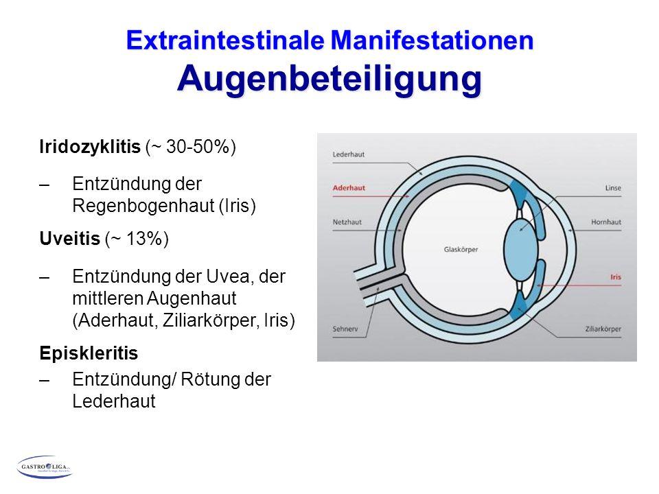 Extraintestinale Manifestationen Augenbeteiligung Iridozyklitis (~ 30-50%) – Entzündung der Regenbogenhaut (Iris) Uveitis (~ 13%) – Entzündung der Uvea, der mittleren Augenhaut (Aderhaut, Ziliarkörper, Iris) Episkleritis – Entzündung/ Rötung der Lederhaut