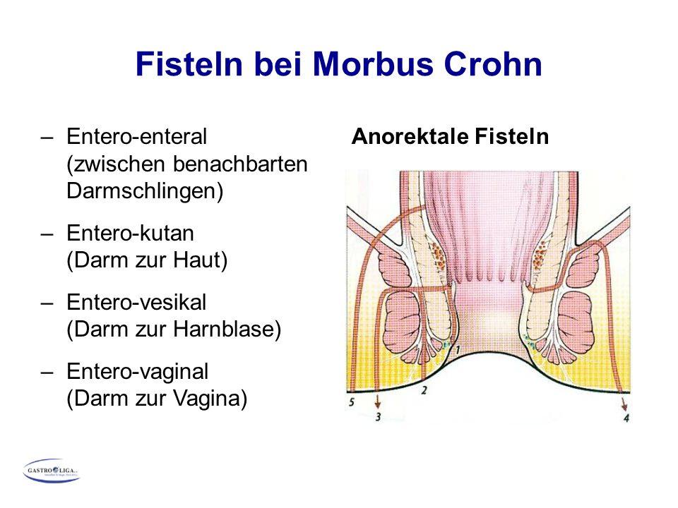 Fisteln bei Morbus Crohn –Entero-enteral (zwischen benachbarten Darmschlingen) –Entero-kutan (Darm zur Haut) –Entero-vesikal (Darm zur Harnblase) –Entero-vaginal (Darm zur Vagina) Anorektale Fisteln