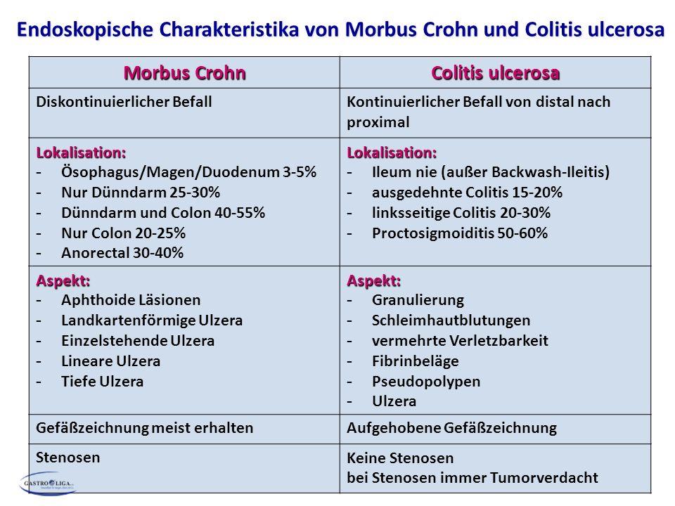 Morbus Crohn Colitis ulcerosa Diskontinuierlicher BefallKontinuierlicher Befall von distal nach proximal Lokalisation: - Ösophagus/Magen/Duodenum 3-5%