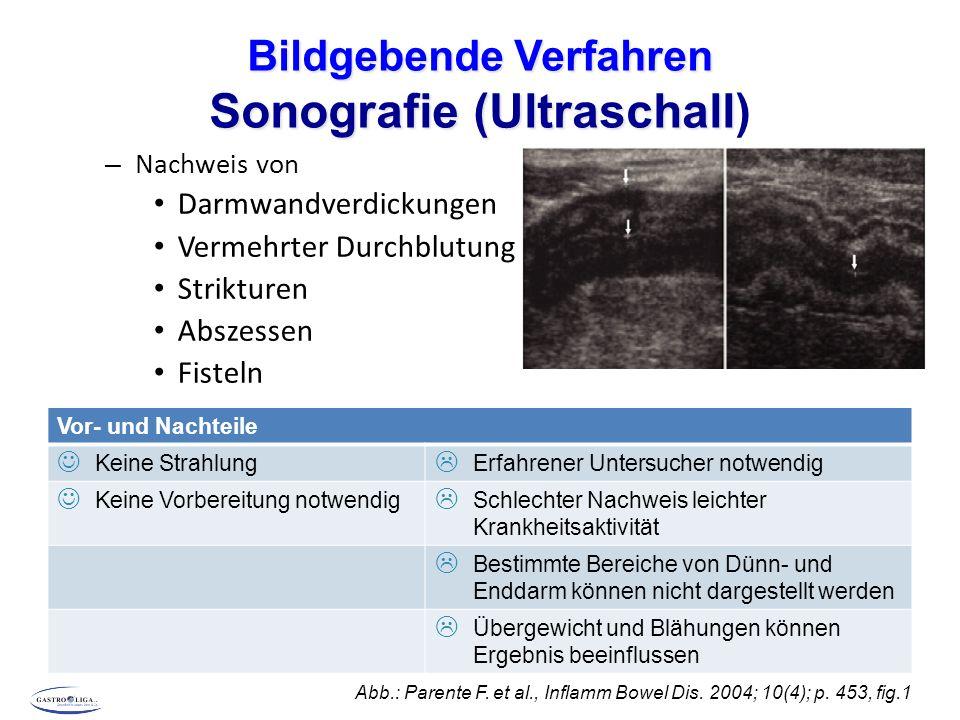 Bildgebende Verfahren Sonografie (Ultraschall Bildgebende Verfahren Sonografie (Ultraschall) – Nachweis von Darmwandverdickungen Vermehrter Durchblutung Strikturen Abszessen Fisteln Abb.: Parente F.