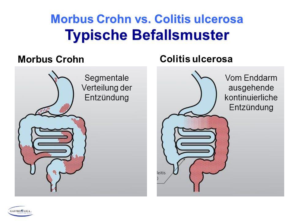 Morbus Crohn vs. Colitis ulcerosa Typische Befallsmuster Morbus Crohn Colitis ulcerosa Segmentale Verteilung der Entzündung Vom Enddarm ausgehende kon