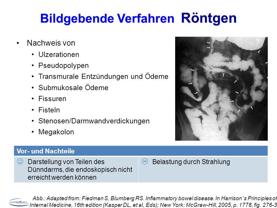 Bildgebende Verfahren Röntgen Nachweis von Ulzerationen Pseudopolypen Transmurale Entzündungen und Ödeme Submukosale Ödeme Fissuren Fisteln Stenosen/Darmwandverdickungen Megakolon Abb.: Adapted from: Fiedman S, Blumberg RS.