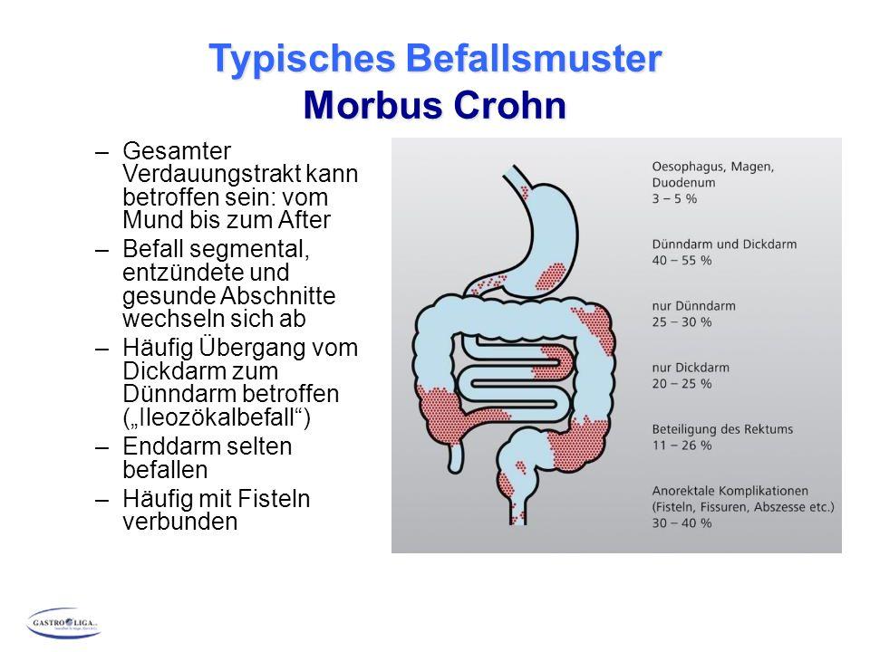 """Typisches Befallsmuster Morbus Crohn –Gesamter Verdauungstrakt kann betroffen sein: vom Mund bis zum After –Befall segmental, entzündete und gesunde Abschnitte wechseln sich ab –Häufig Übergang vom Dickdarm zum Dünndarm betroffen (""""Ileozökalbefall ) –Enddarm selten befallen –Häufig mit Fisteln verbunden"""