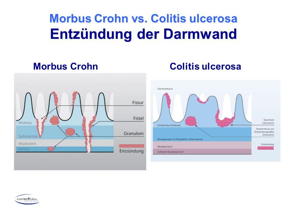 Morbus Crohn Colitis ulcerosa Morbus Crohn vs. Colitis ulcerosa Entzündung der Darmwand