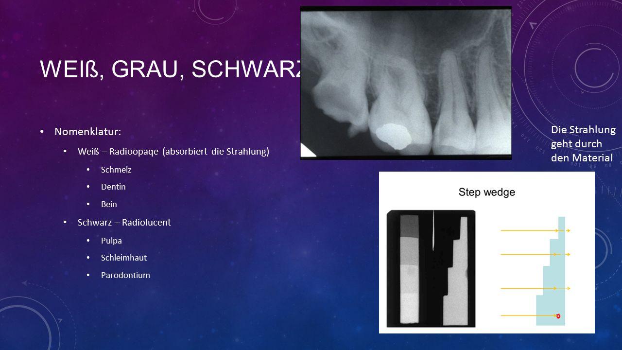 WEIß, GRAU, SCHWARZ Nomenklatur: Weiß – Radioopaqe (absorbiert die Strahlung) Schmelz Dentin Bein Schwarz – Radiolucent Pulpa Schleimhaut Parodontium Die Strahlung geht durch den Material