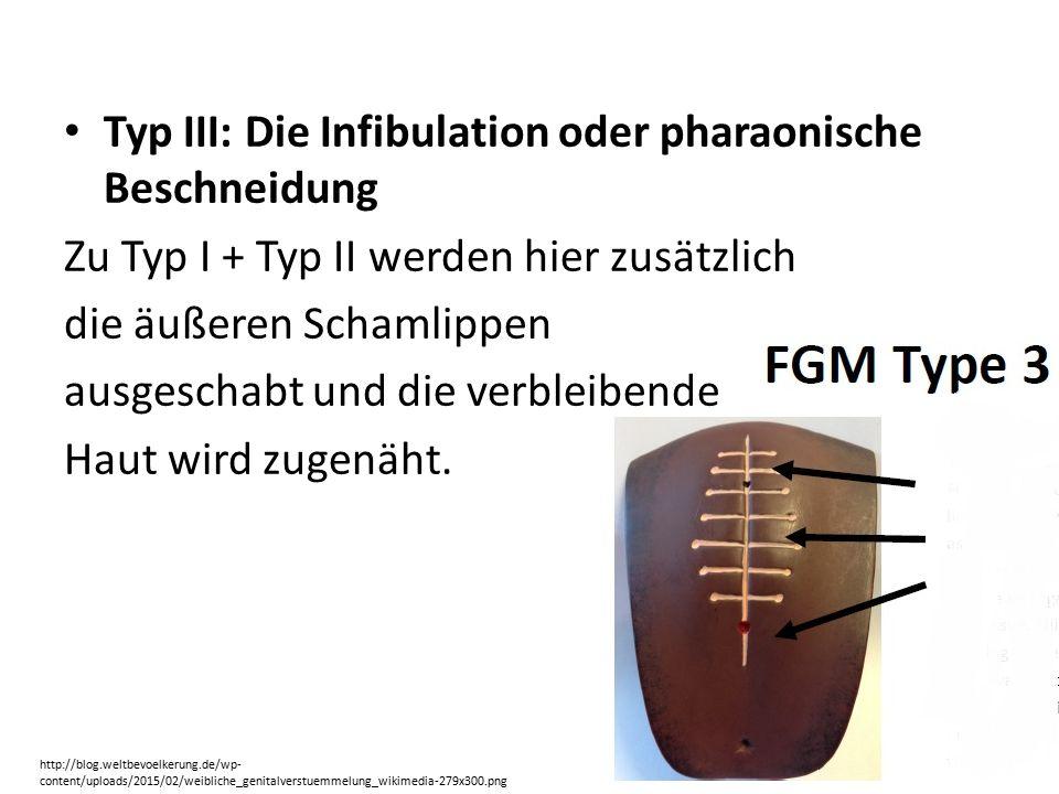 Typ III: Die Infibulation oder pharaonische Beschneidung Zu Typ I + Typ II werden hier zusätzlich die äußeren Schamlippen ausgeschabt und die verbleibende Haut wird zugenäht.
