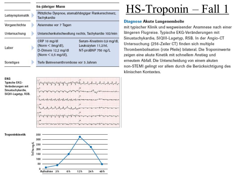 HS-Troponin – Fall 2