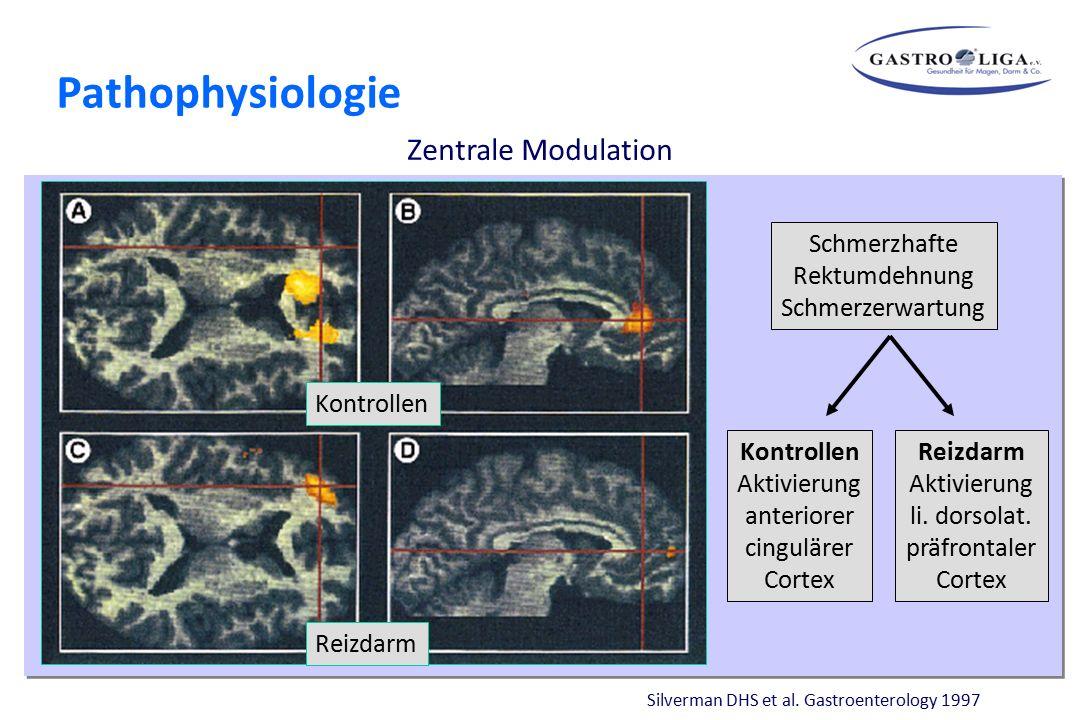 Silverman DHS et al. Gastroenterology 1997 Kontrollen Reizdarm Schmerzhafte Rektumdehnung Schmerzerwartung Reizdarm Aktivierung li. dorsolat. präfront