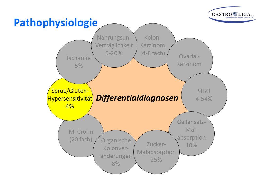 Differentialdiagnosen Kolon- Karzinom (4-8 fach) Ovarial- karzinom SIBO 4-54% Gallensalz- Mal- absorption 10% M. Crohn (20 fach) Sprue/Gluten- Hyperse