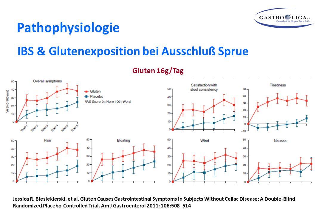 Gluten 16g/Tag IBS & Glutenexposition bei Ausschluß Sprue Jessica R. Biesiekierski. et al. Gluten Causes Gastrointestinal Symptoms in Subjects Without