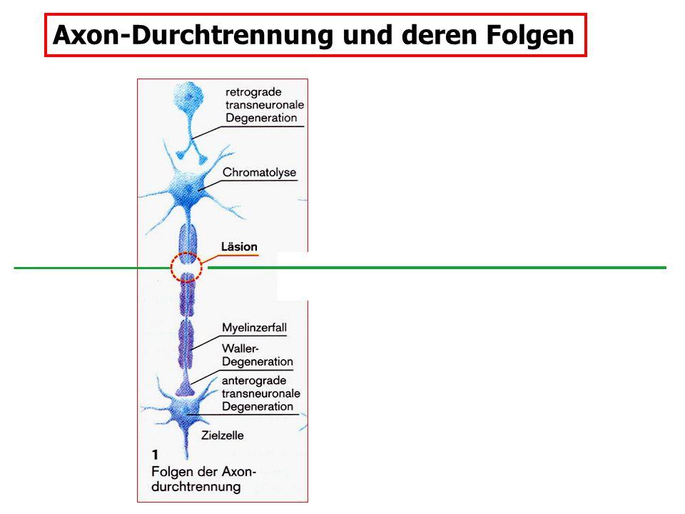Axon-Durchtrennung und deren Folgen